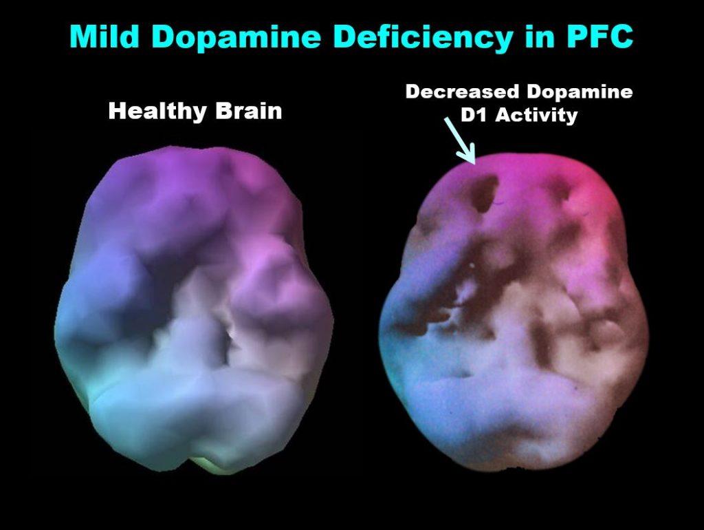 ADD-ADHD Brain Treatment