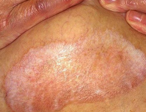 Lichen Sclerosus Treatment Success Story