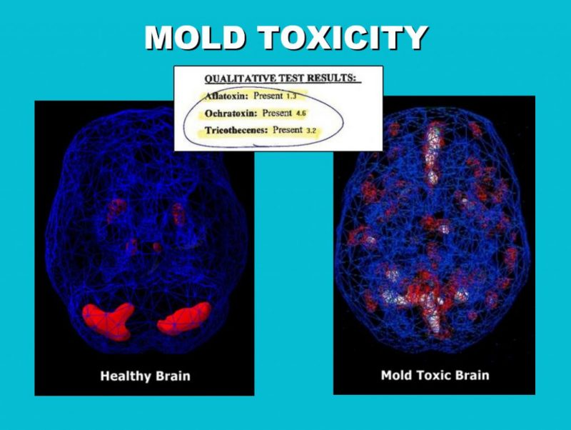 Mold affected brain activity