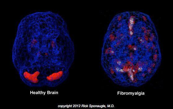 black mold fibromyalgia