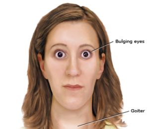 hyperthyroidism-overactive-thyroid-300x260
