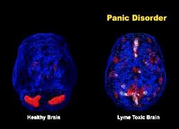 Anxiety Treatment Overactive Limbic System Symptoms