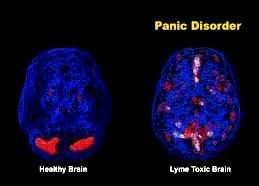 anxiety-treatment-oldsmar, fl_Sponaugle Wellness Institute