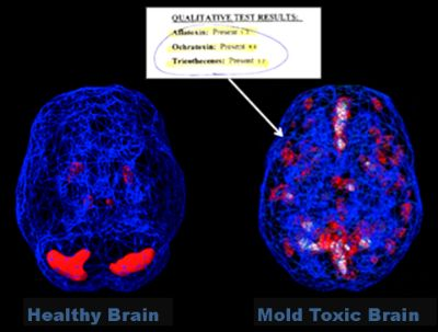 Mold Toxicity Causing Panic Disorder And Bipolar Symptoms