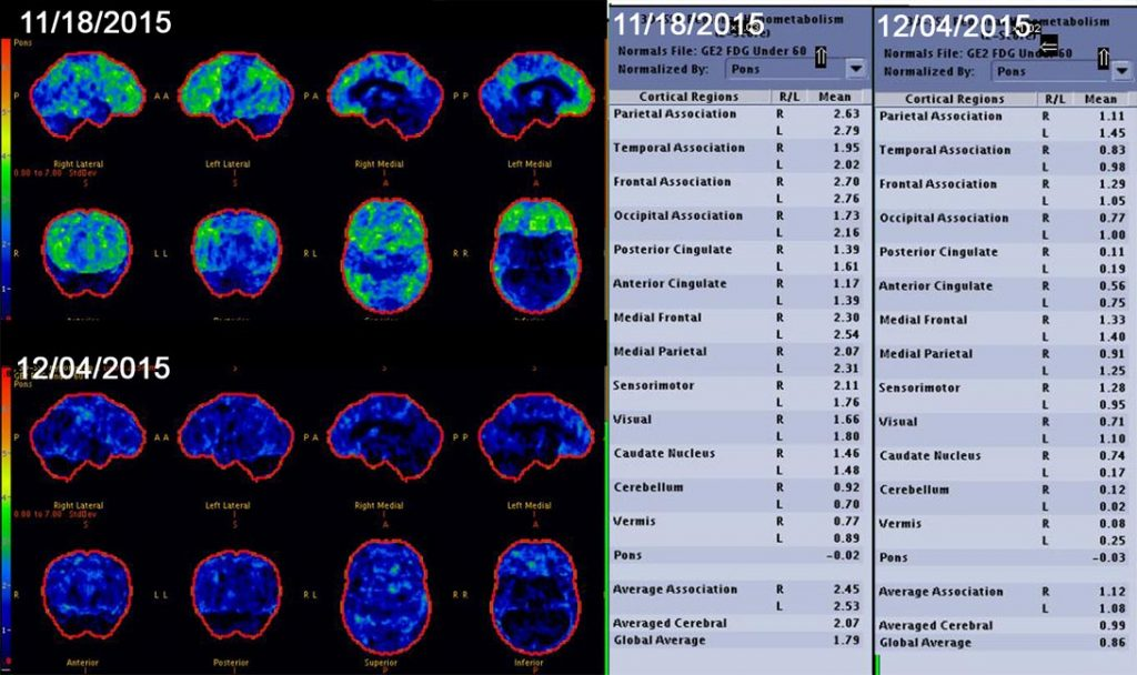 mold pet scan