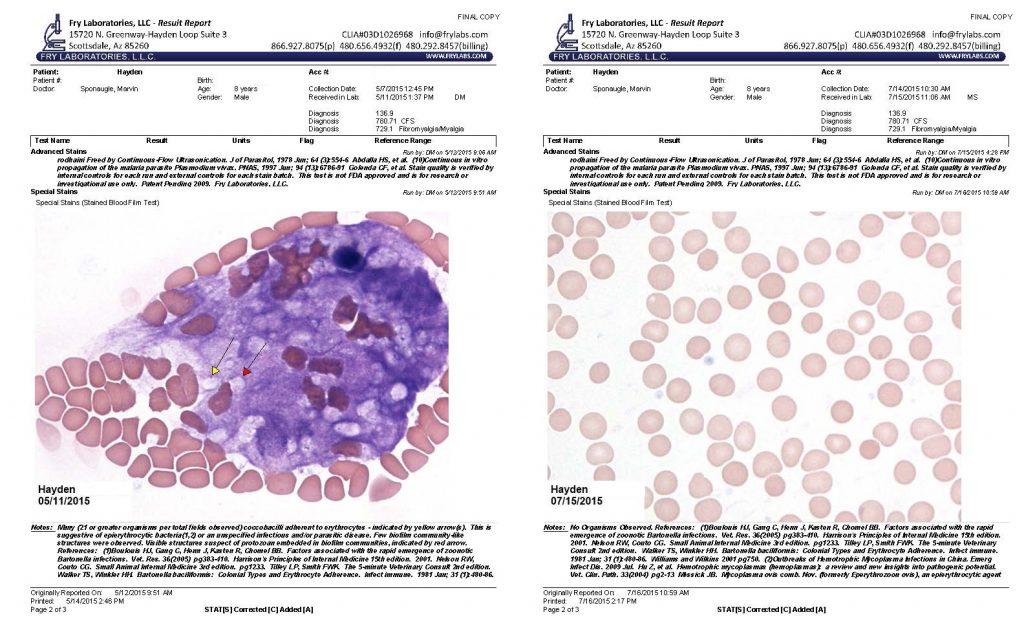 Hayden Lyme Disease Biofilm